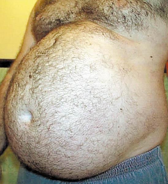 Волосатые xxxшие жопы крупным планом фото пытка